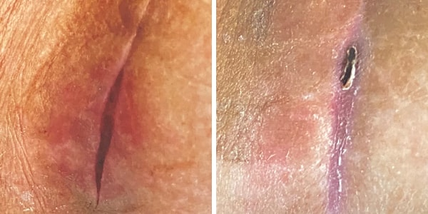 before and after incision
