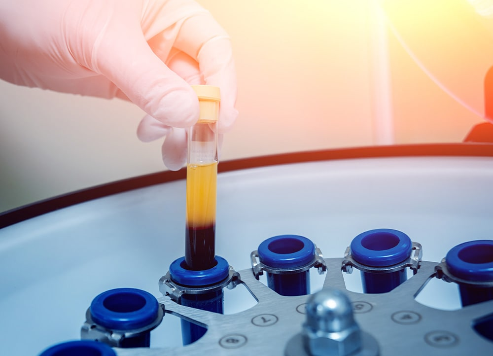doctors prepares a vial for centrifuge for platelet-rich plasma treatment