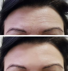 before and after forehead Botox injection